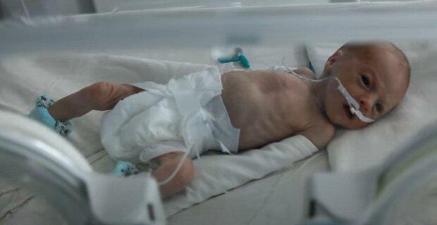 Holčička se narodila s hmotností asi 500 gramů: maminka po celou dobu fotila své předčasné dítě a jak nyní vypadá