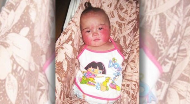 Rodina adoptovala dívku, která se narodila bez rukou a nohou: biologická matka dítě okamžitě opustila