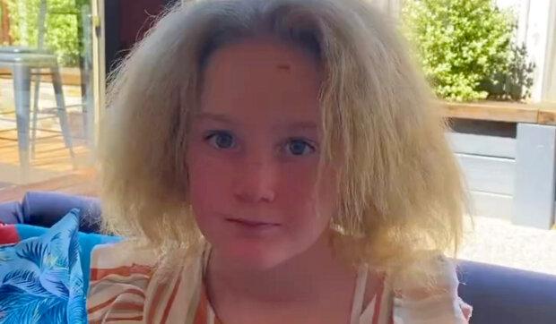 """""""Její vlasy nerostou od dvou let"""": jak vypadá desetiletá holčička, která má syndrom nečesaných vlasů"""